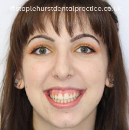 Full Image - Staplehurstdentalpractice