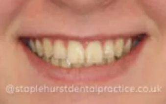 Before - Staplehurstdentalpractice