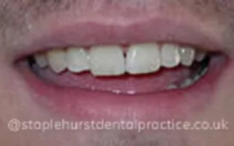 After - Staplehurstdentalpractice